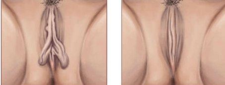 Labioplastika emeliyyati